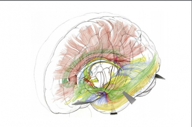 The impact of White Matter Anatomy for Brain tumor and Epilepsy surgery - 12th Hands-On Cadaver Course